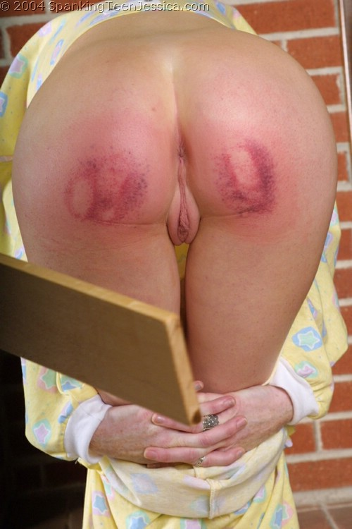 severe spanking