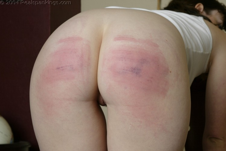 Agree, How to clear up spank marks something