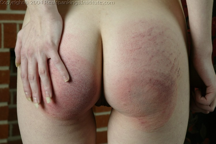My wife sore spanked bottom have hit