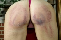 The results of severe corporal punishment from a school paddle